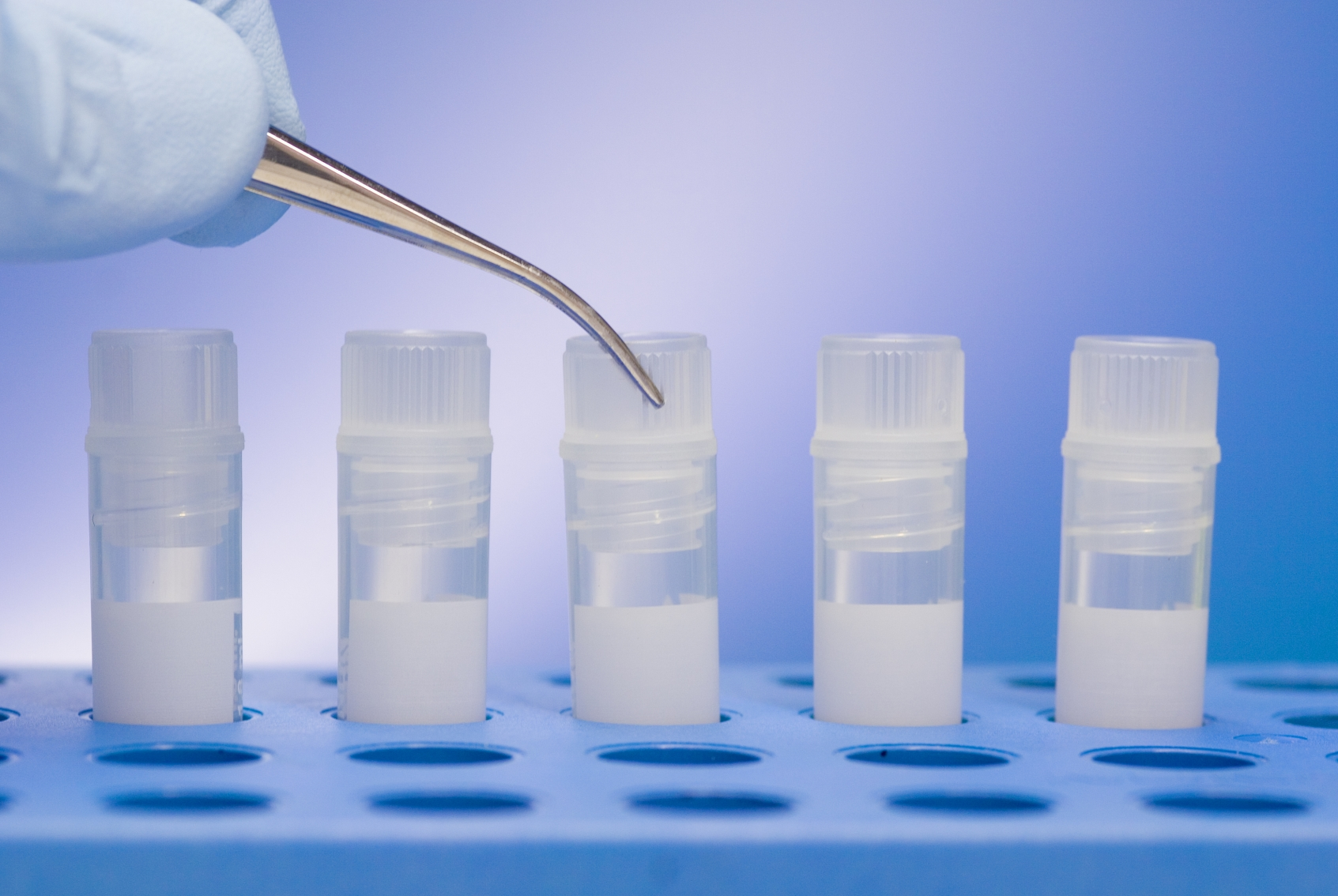 3 Key Trends You Must Know to Profit from Stem Cell Products