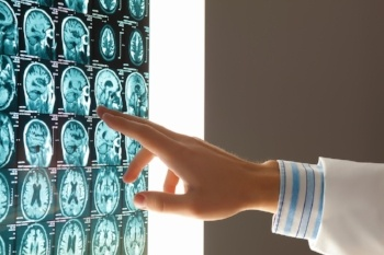 5 Important Trends in the Diagnostic Imaging Market