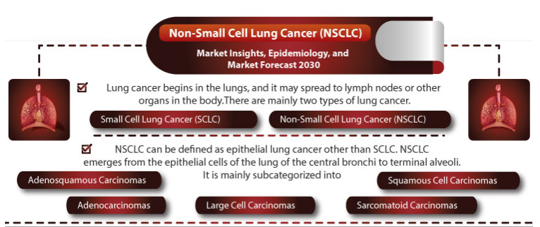 Infographic: Non-Small Cell Lung Cancer (NSCLC) Market Insights